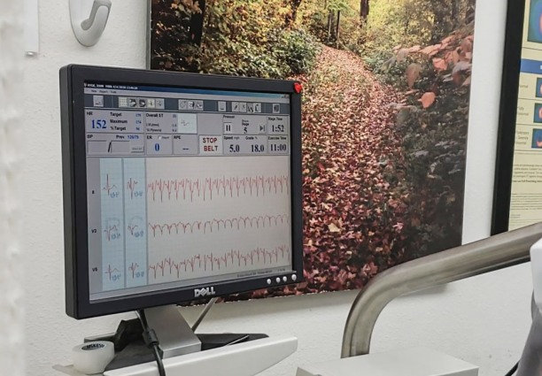 Once finished with the exercise you'll sit through another round of imaging. All of your EKG, blood pressure, and before and after images are collected and evaluated by your doctor.